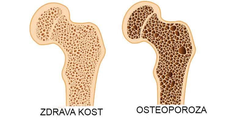 Bukovička banja osteoporoza